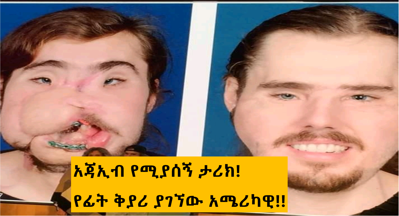Ethiopian daily news- The world amazing face transplant